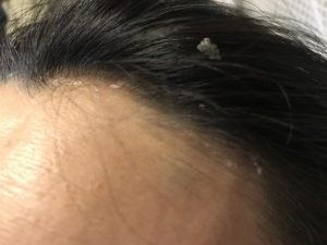 大きいフケが大量発生で痒い!脂漏性湿疹の原因はかび ...